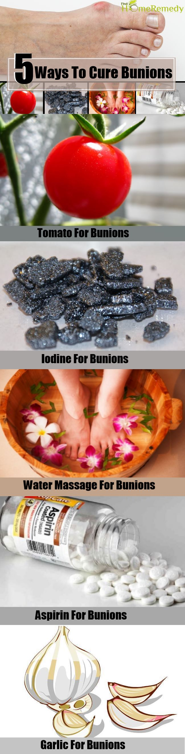 5 Ways To Cure Bunions