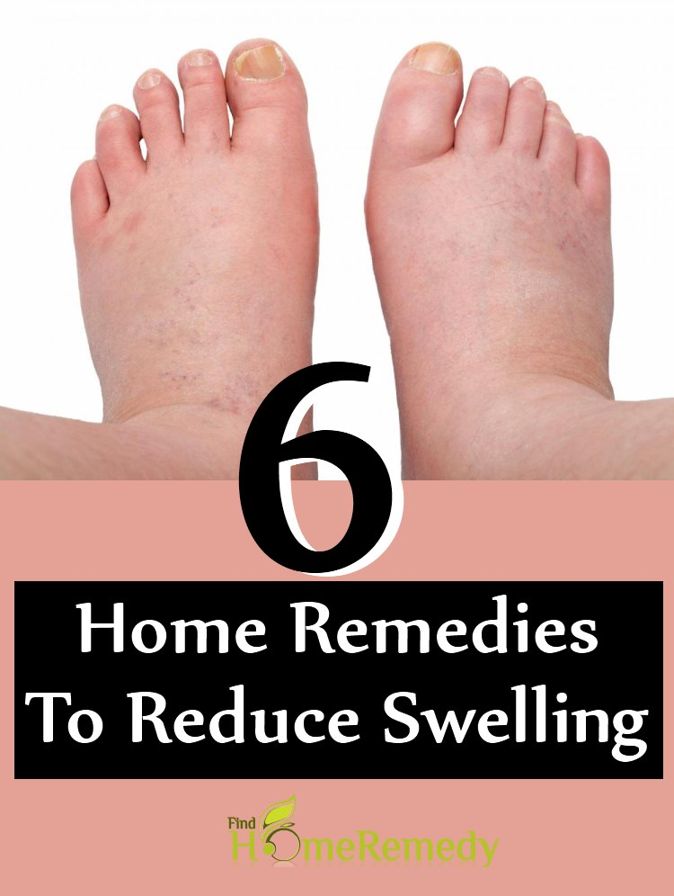 6 Home Remedies To Reduce Swelling