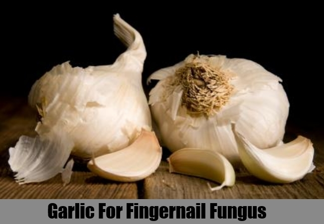 5 Fingernail Fungus Herbal Remedies, Natural Treatments & Cure ...