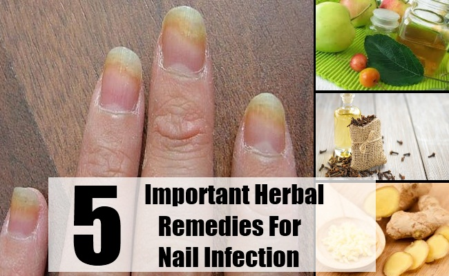 5 Important Herbal Remedies For Nail Infection - How To Treat | Find ...