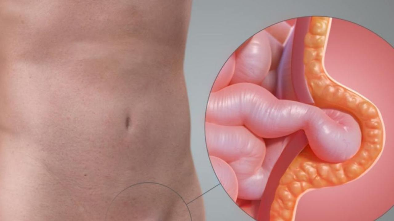 7 Best And Effective Ways To Cure Umbilical Hernia Naturally