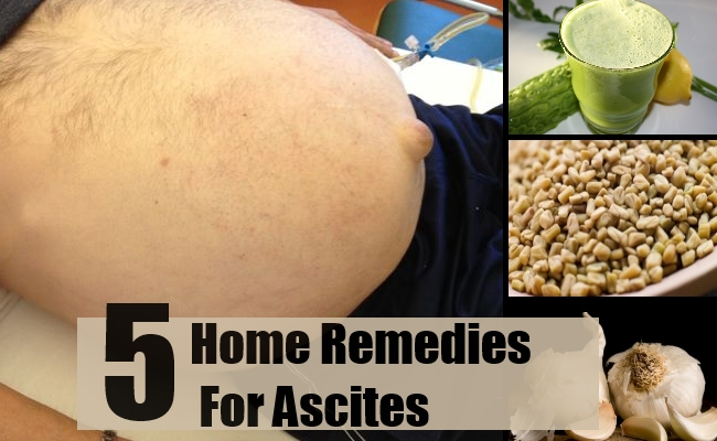 Remedies For Ascites