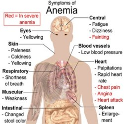 Natural Cures For Anemia
