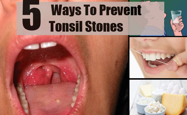 5 Ways To Prevent Tonsil Stones