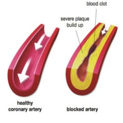 Elasticity In Arteries