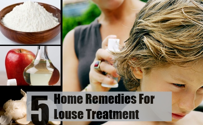 5 Ways To Treat Louse With Home Remedies | Find Home Remedy ...