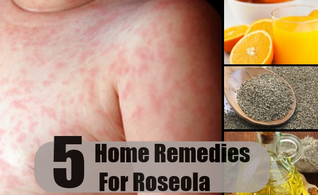 5 Roseola Home Remedies Natural Treatments And Cure