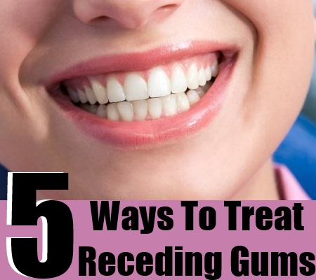 Treat Receding Gums