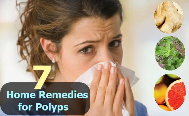 polyps remedies