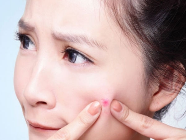Remedies for Pimples and Acne