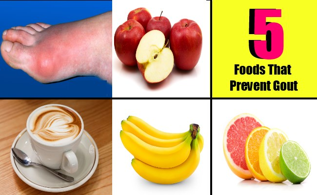 5 Foods That Prevent Gout