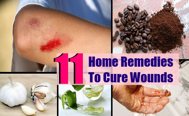 11 Sure Shot Home Remedies To Cure Wounds