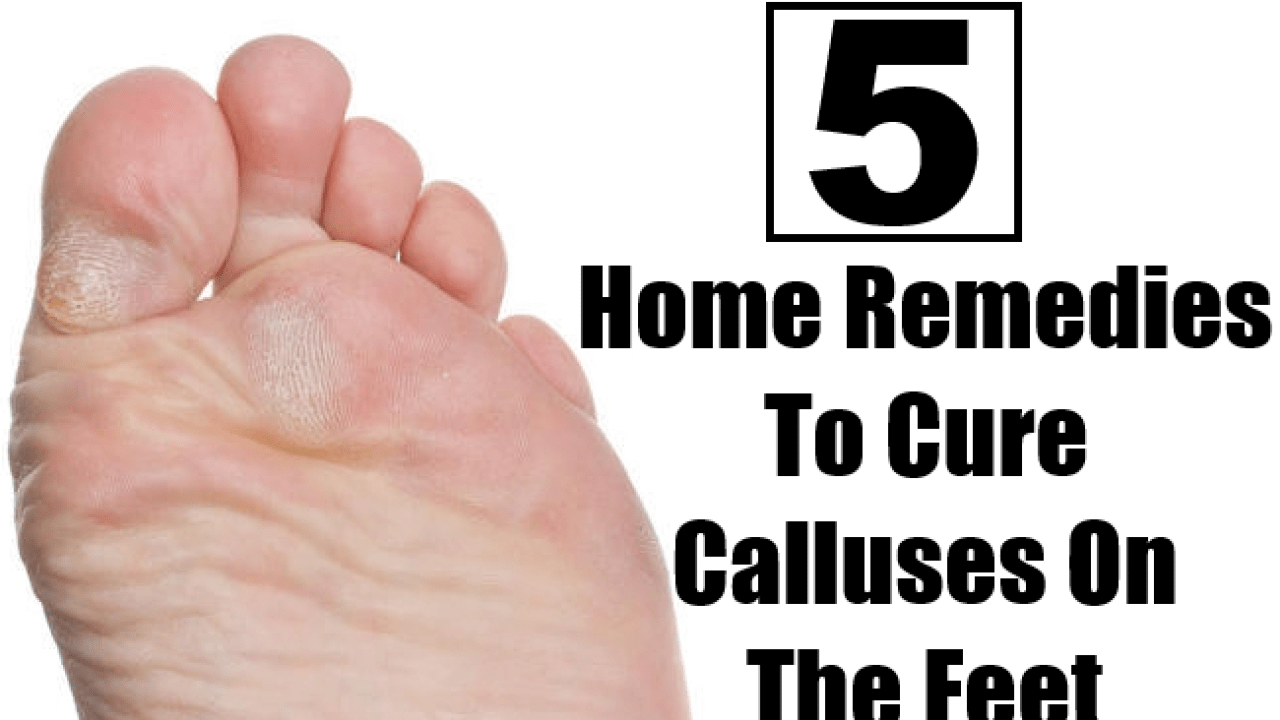 Awesome 5 Best Home Remedies To Cure Calluses On The Feet Find Download Free Architecture Designs Scobabritishbridgeorg