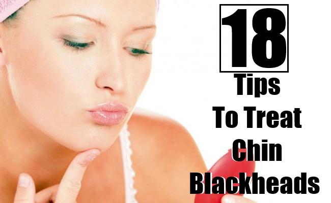 Tips To Treat Chin Blackheads