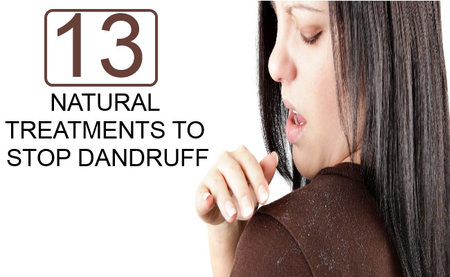 NATURAL TREATMENTS TO STOP DANDRUFF