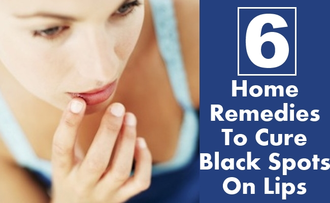 Remedies To Cure Black Spots On Lips