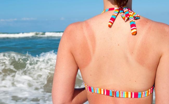 Heals Sunburns (3)