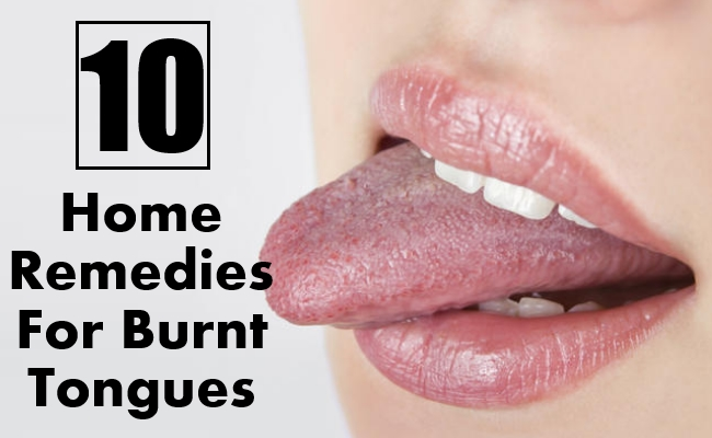 Home Remedies For Burnt Tongues