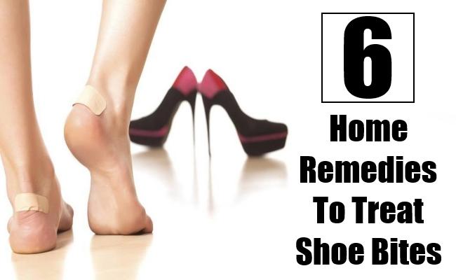 Home Remedies To Treat Shoe Bites