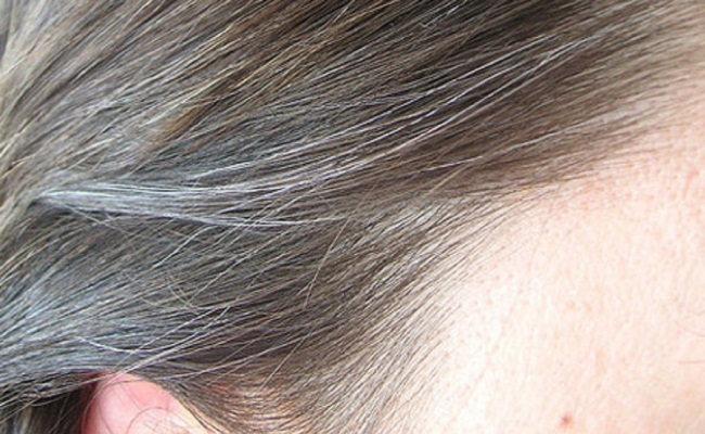 Arnica Averts Premature Greying Of Hair