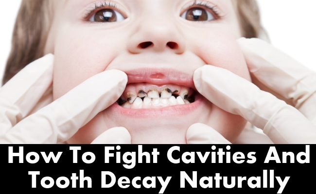 How To Fight Cavities And Tooth Decay Naturally