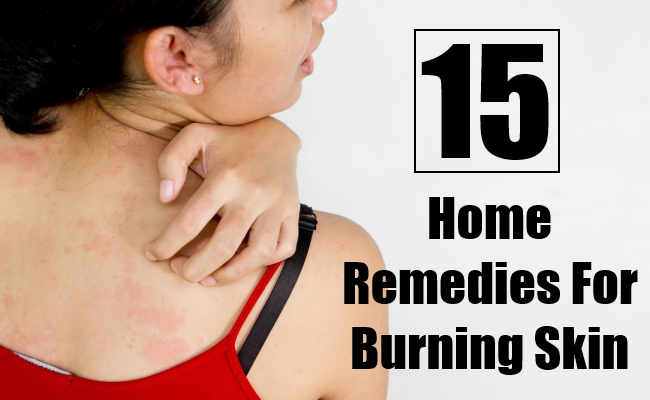 Home Remedies For Burning Skin