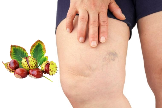 Benefits Of Horse Chestnut For Varicose Veins