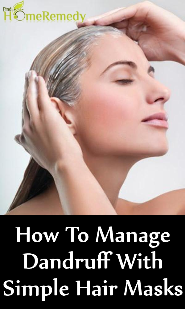 How To Manage Dandruff With Simple Hair Masks