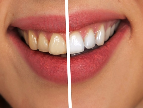 Whitening Teeth Naturally: Home Tips for the Perfect Pearly Whites