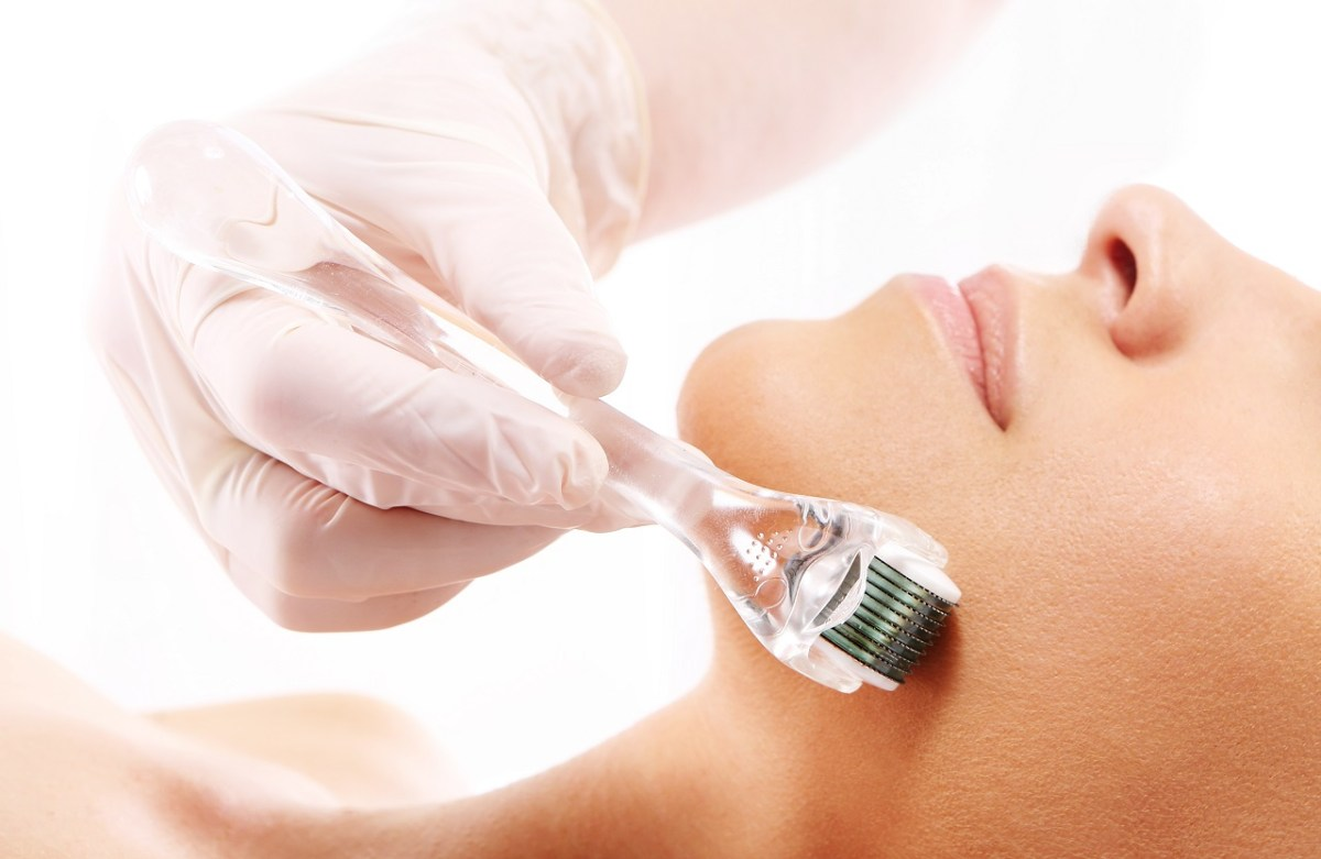 At-home Microneedling that Promises a Younger Skin in Just 3 Weeks