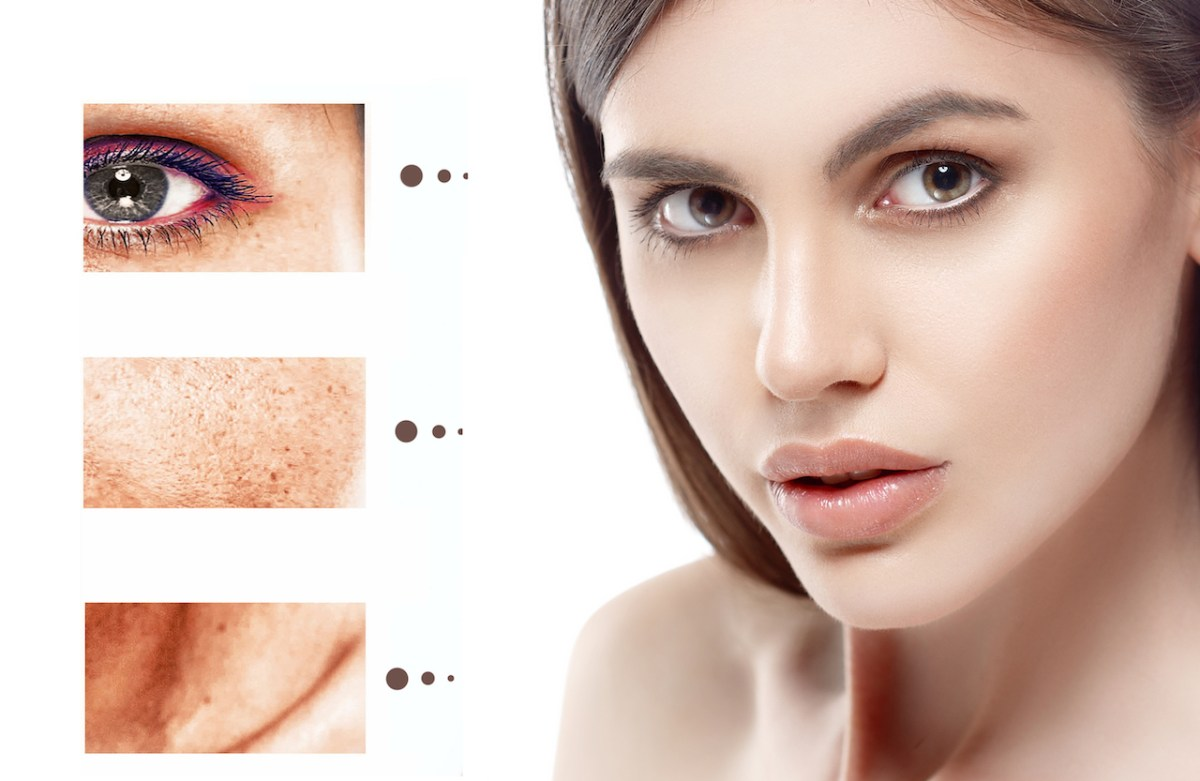 Remedies For Dark Spots That Promise Results