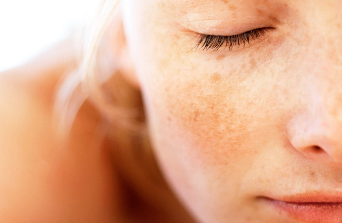 The Skinny on Melasma, and How You Can Manage it