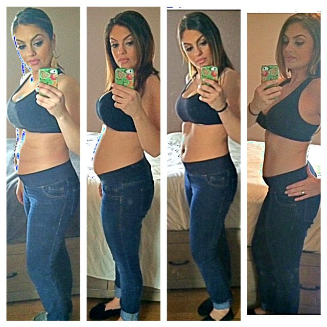 Can hormone imbalance make you lose weight image 8