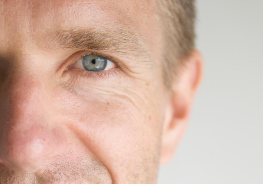 Fadenlifting für Männer,Augenlidkorrekturen und Augenlidstraffung Berlin beim Mann,