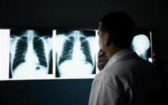 Salute, 38mila casi di tumore al polmone nel 2013