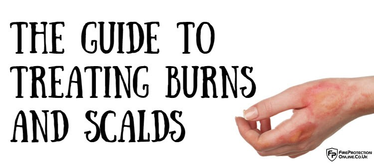 The Guide To Treating Burns And Scalds