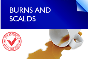 first aid tips - burns and scalds
