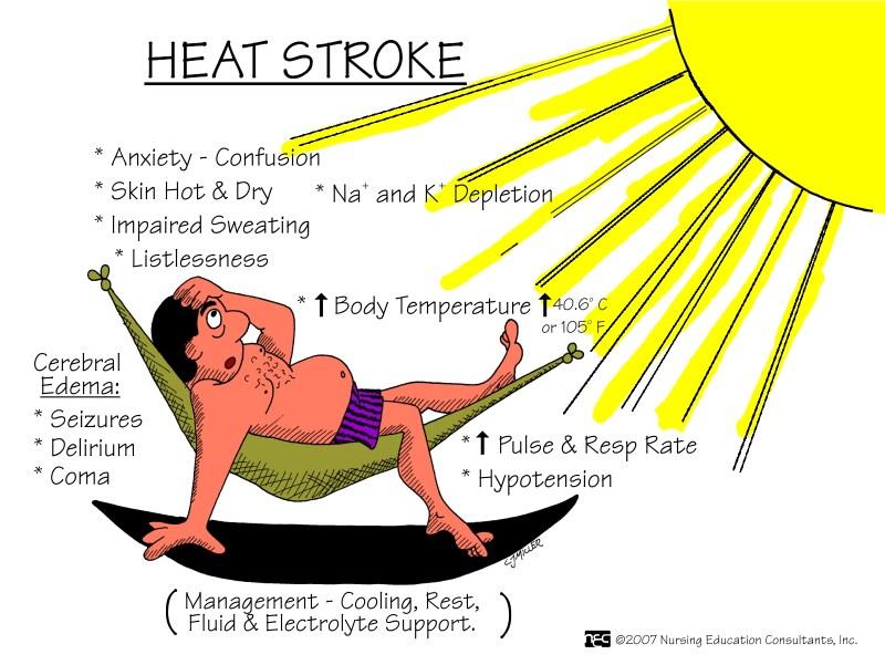 Heat Stroke Is A Medical Heat Stroke First Aid