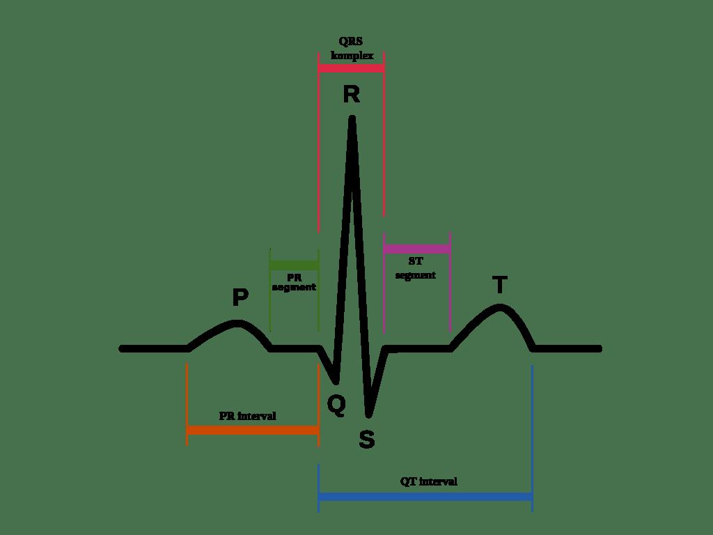 A Basic Guide To Ecg Ekg Interpretation