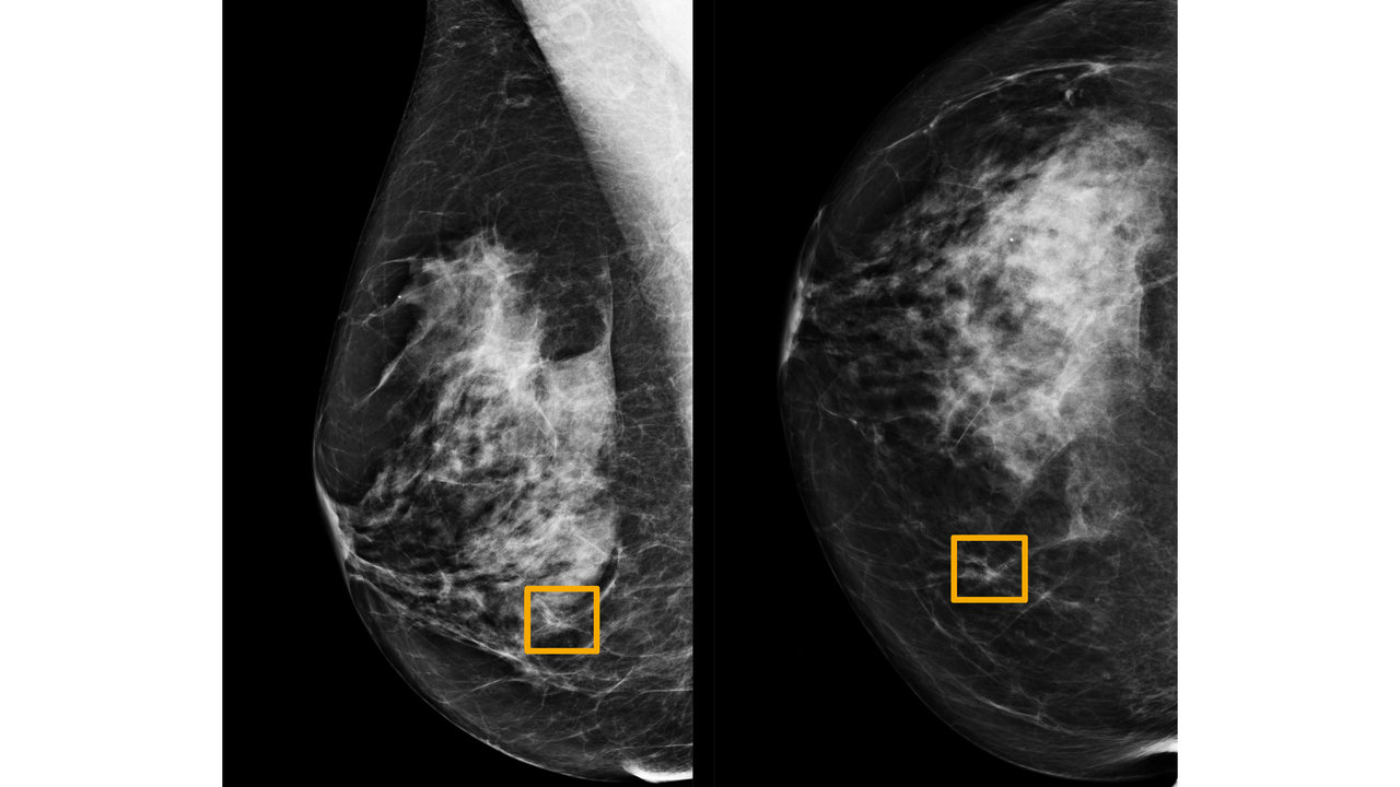 Breast cancer is underdiagnosed in India Causes tests treatment options you should know