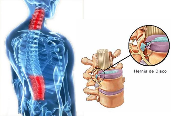 hernia de disco fisiatria