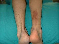 Lesione del tendine d achille – FisioBrain e71e54720a2