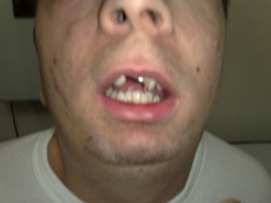 Sindrome di Shprintzen-Goldberg
