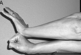 Epicondilalgia laterale di gomito
