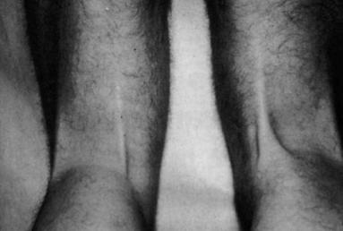 Rigenerazione del tendine del semitendinoso dopo prelievo per la ricostruzione del legamento crociato anteriore
