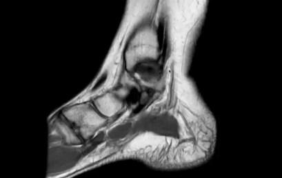 Anomalie alla risonanza magnetica dopo distorsione nella caviglia infortunata e nella controlaterale