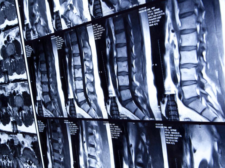 Radiologia per fisioterapisti
