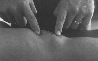 Variabilità dell'allineamento femororotuleo nei soggetti sani