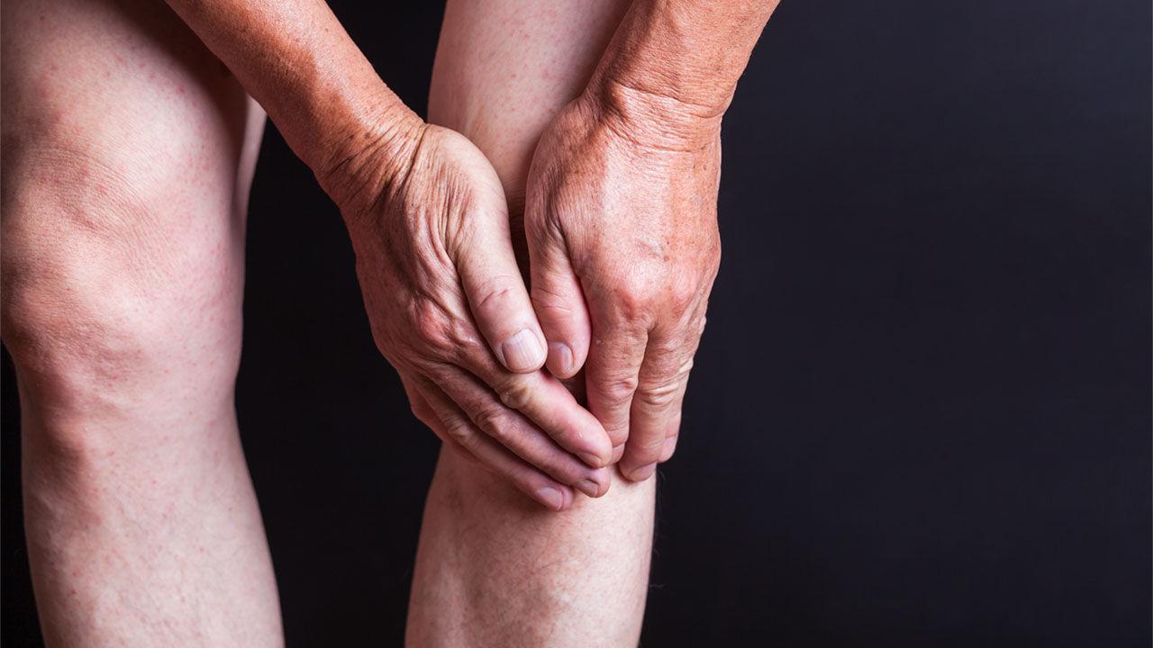 Sviluppo di artrosi in pazienti con lesioni meniscali degenerative trattati con esercizio terapeutico o chirurgia.