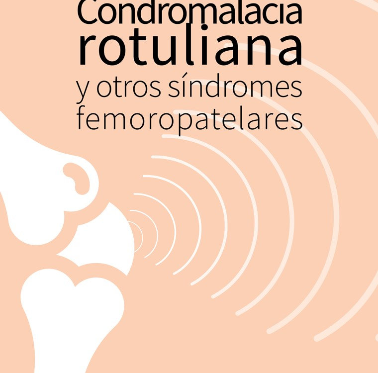 Condromalacia rotuliana y otros síndromes femoropatelares